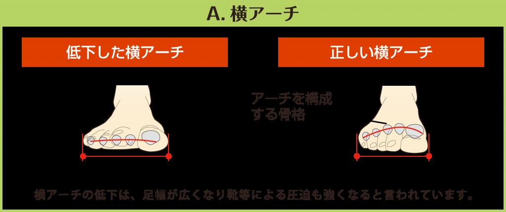 【A.横アーチ】低下した横アーチと正しい横アーチを図で比較しています。横アーチの低下は、足幅が広くなり靴等による圧迫も強くなると言われています。