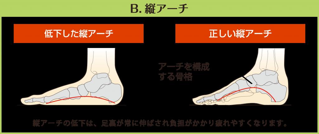 【B.縦アーチ】低下した縦アーチと正しい縦アーチを図で比較しています。縦アーチの低下は、足裏が常に伸ばされ負担がかかり疲れやすくなります。